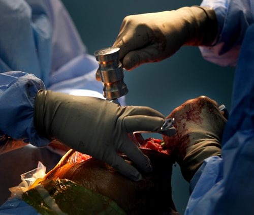 A stainless steel mallet drives home a piece of a knee replacement in Managua. Phil Hossack / Winnipeg Free Press October 25, 2012