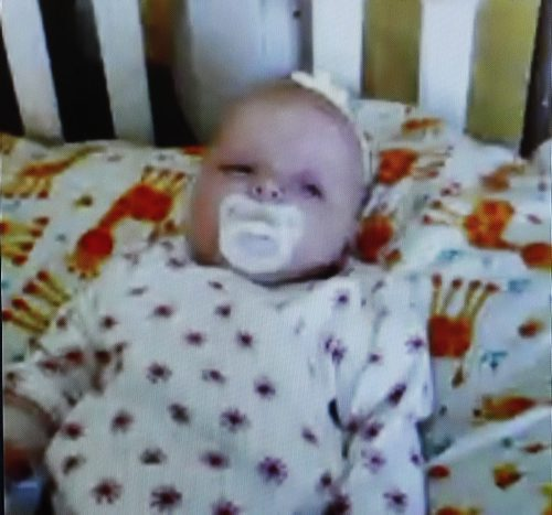Bailey in photo during blood transfusion- screen grab -  Epic Information Solutions Skype teleconference with its employee blood donours and the mother  Kristen Phillips and daughter Bailey receiving a blood transfusion at HSC -Subject: Three month old Bailey Paige Phillips was born with congenital cytomegalovirus (CMV). Bailey has already received 38 blood transfusions since she was born and currently needs a transfusion every three days. It is expected she will stay in hospital for the next four months, including Bailey's first Christmas. Bailey and her mom Kristen will be Skyping (from Brandon) with people at Epic Information Solutions Friday morning. The employees there are donating their blood to Bailey. The story will likely focus on the baby who is in need of the blood transfusions but it would be cool to get a picture of the employees talking to the mother and looking at Bailey over Skype. Bailey's great aunt will be there as well. The media release also says they have a Christmas card prepared to give to Bailey and the employees will be signing up at the event. / Dec. 6 2013 / KEN GIGLIOTTI / WINNIPEG FREE PRESS